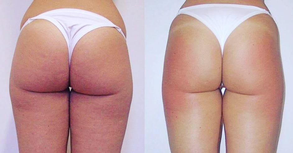 Resultados tratamientos body contourning