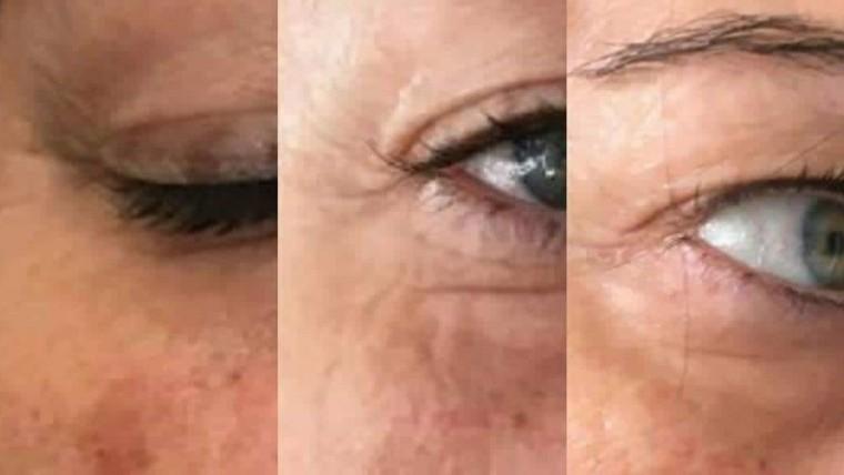 Resultados tratamientos faciales
